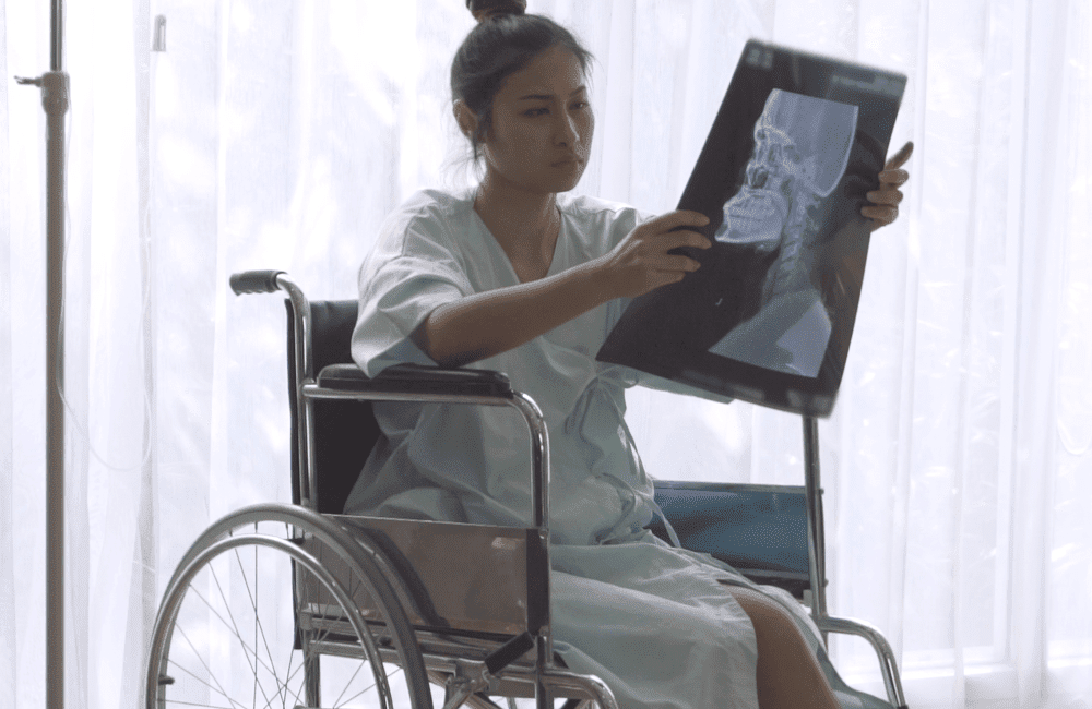 A patient views an x-ray of brain injury surgery.